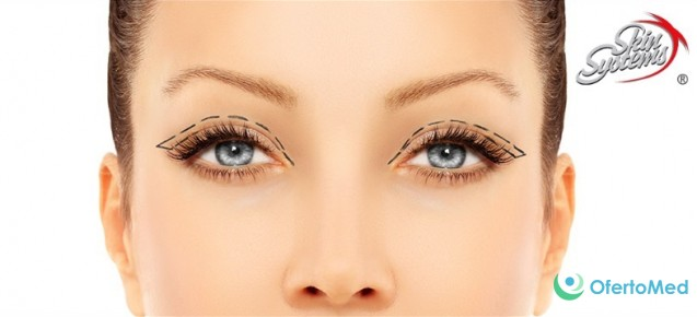 Upper eyelid blepharoplasty  /aesthetic correction of the upper eyelids/ for 830€ at SkinSystems Hospital for Plastic and Aesthetic Surgery in Bulgaria
