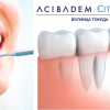 NEW TEETH! Dental implants are now available thanks to Tokuda Hospital Sofia